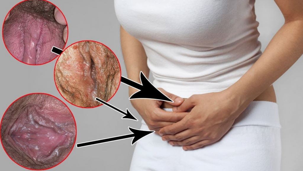 How To Use Tea Tree Oil For Yeast Infection